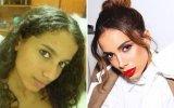 Anitta já fez 50 intervenções estéticas