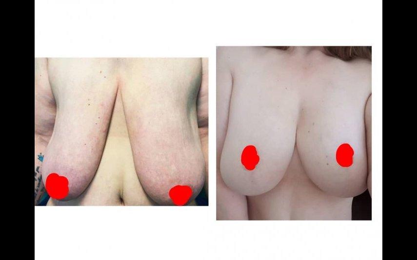 Cirurgia mamária